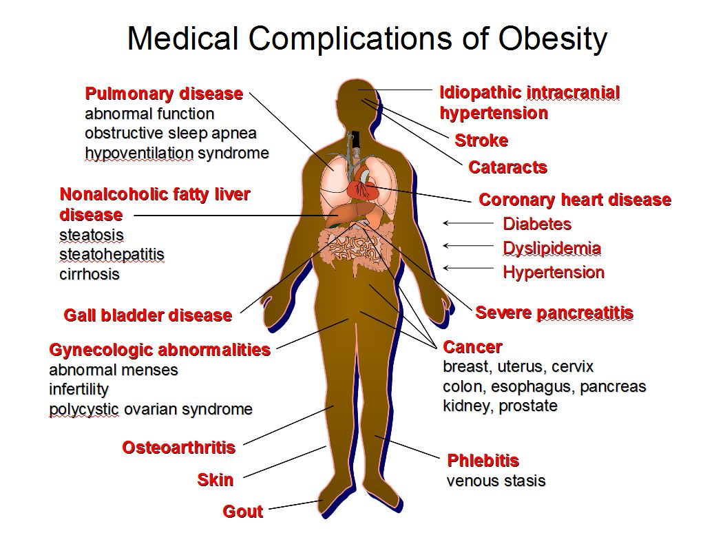 Medical complication of obesity